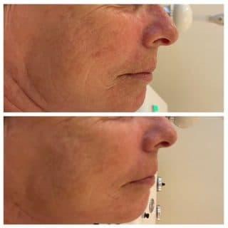 ultrasonic treatment Aptos