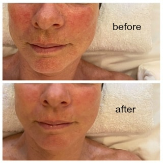 Aptos microdermabrasion with Ultrasonic Facial