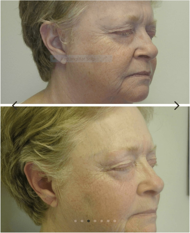wrinkle therapy Aptos