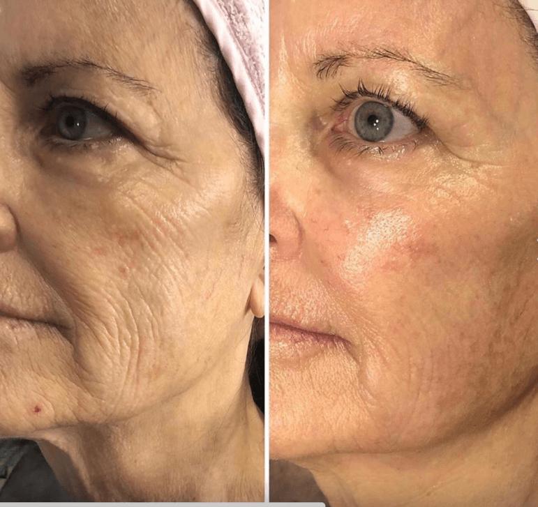 anti-aging face