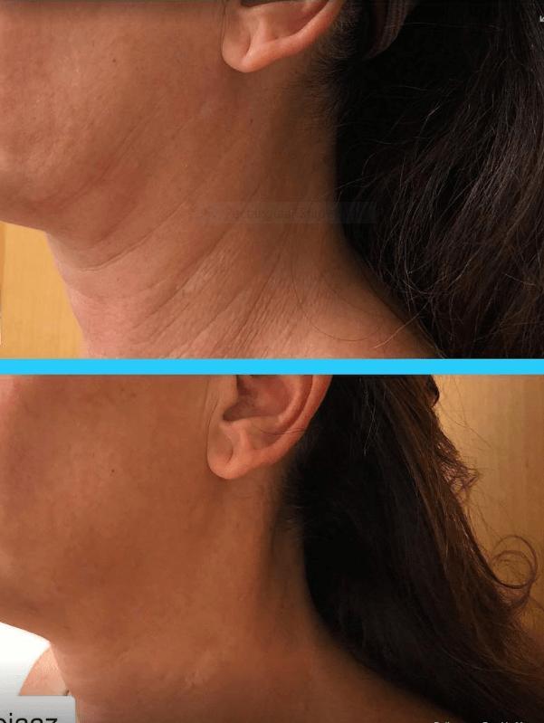 anti aging neck