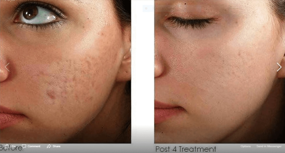 acne microneedling Aptos