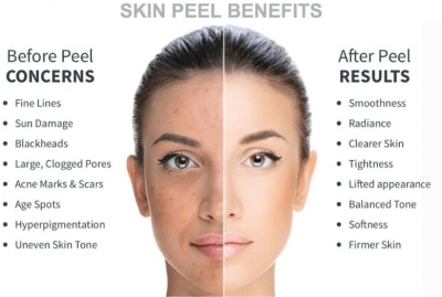 skin peels in Aptos