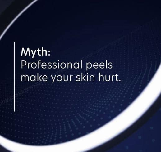 do peels hurt